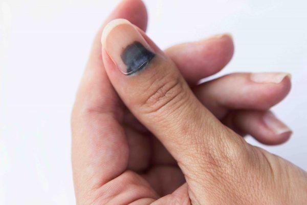 Szubungális bevérzés a kéz hüvelykujjának körménél.