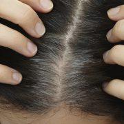 Az őszülő haj és a táplálkozási hiányosságok