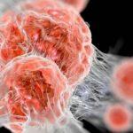 Mi okozhat rákos megbetegedést?