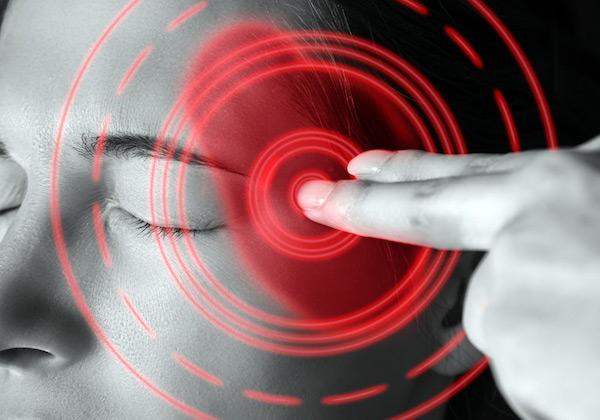 Migrénes fejfájást jelöl piros körrel egy hölgy halántékán egy kép.