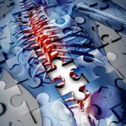 Krónikus fájdalom: egy létező betegség