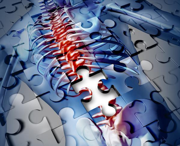 Puzzle-ból kirakva egy emberi test piros gerincoszloppal, melyhez egy balta közelít, ezzel utalva a krónikus, elviselhetetlen fájdalomra.