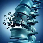 Mi köze a cukornak a csontritkuláshoz?