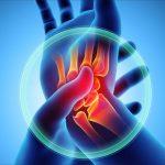 Ízületi fájdalom csökkentése egyszerűen