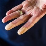 A Raynaud-betegség természetes gyógymódjai