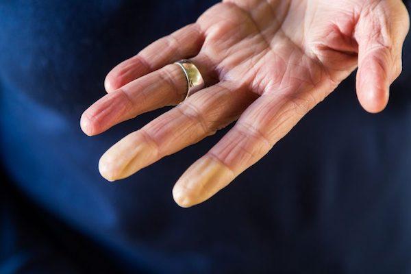 Raynaud-betegségben szenvedő személy elfehéredett kézujjai.