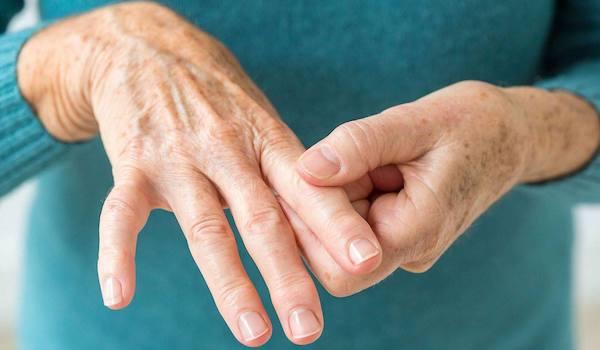 Ízületi gyulladással küszködő hölgy mutatja fájós ujját.