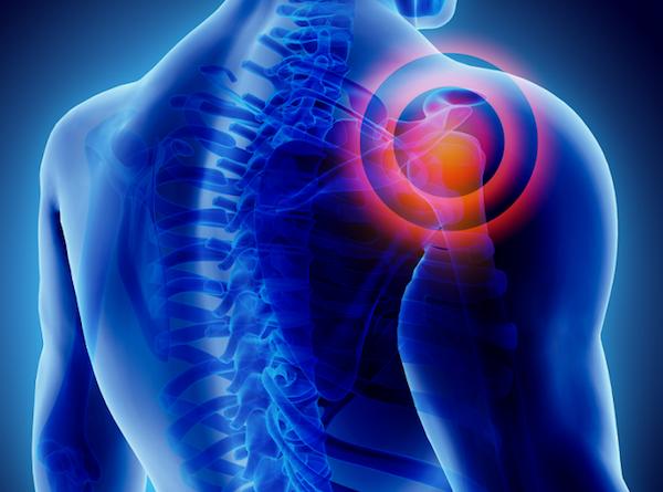 Vállfájdalom megjelölése egy emberi sematikus testen.