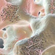 Egy rettegett betegség: csontritkulás