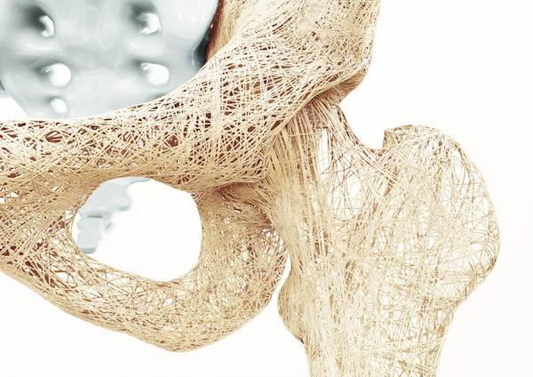 Csípőcsont alakúra formázott anyag cérnával beszőve.