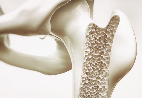 Oszteoporózis megmutatása egy sematikus ábrán.