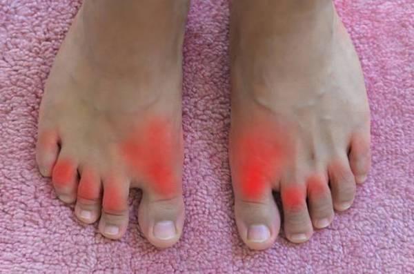 Lábujjak fájdalma piros foltokkal jelölve.