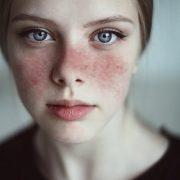 Egy komoly autoimmun betegség: lupusz