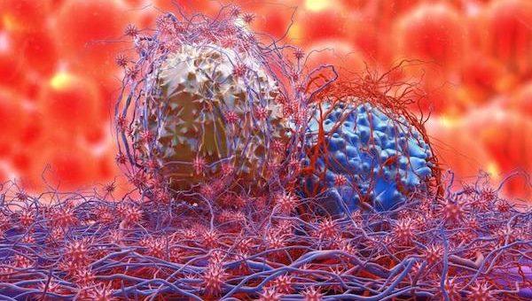 Egyes ráktípusok legszembetűnőbb jelei