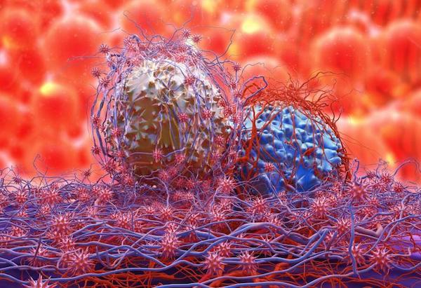 A vérből kimutathatók a legveszélyesebb ráktípusok