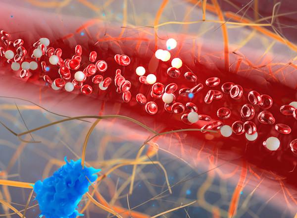 Zsírsejtek a véráramban, a vér magas trigliceridszintjét jelzi.