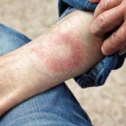 Bőrproblémának hiszi, de lehet, hogy súlyosabb betegsége van