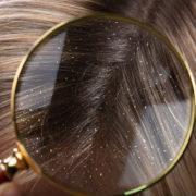 Korpásodást nem csak a száraz fejbőr okozhat