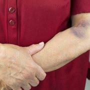 Mitől keletkezhet véraláfutás?
