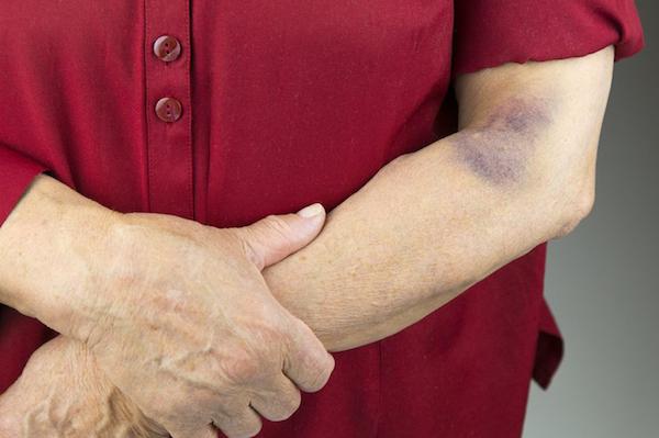 Véraláfutás egy idősebb hölgy könyékhajlatánál.