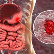 A gyomorfekély aggasztó tünetei