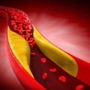 Az eltömődött artériák tünetei