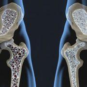 Csontritkulás, a rettegett kór