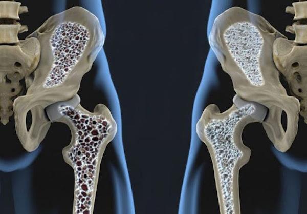 Két csípőcsonton a csont szerekezetének bemutatása: egészséges csont és oszteoporózis.