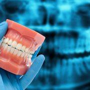 A fogak csikorgatása elleni módszerek