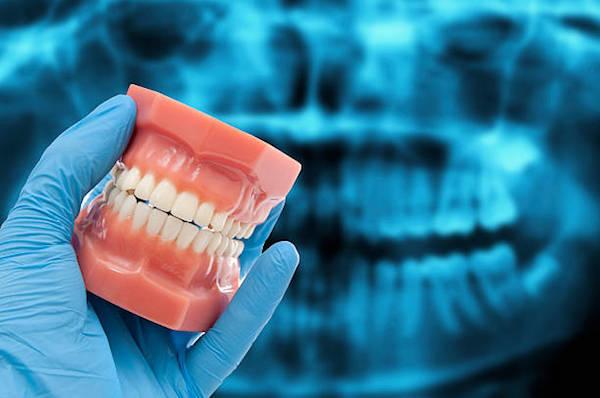 Panoráma röntgenfelvétel kivetített képe előtt tart egy fogorvos kezében egy helyes harapású műanyag fogsorsablont.