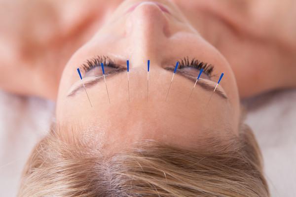 Akupunktúrás tűk egy hölgy homlokán migréncsökkentés miatt.
