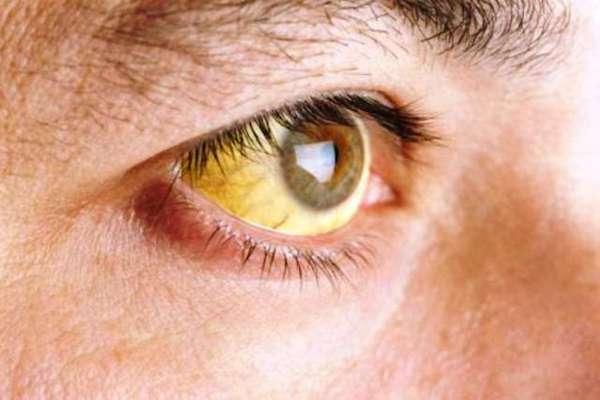 Májbetegségre utaló sárgás szemfehérje.