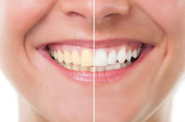 Módszerek a fogak otthoni fehérítésére