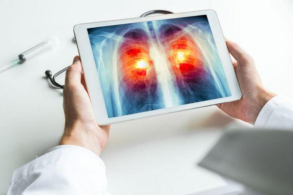 Egy fehér köpenyes orvos egy tabletet tart a kezében, amelyen egy tüdő képe látható.