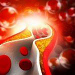 5 életmódbeli tipp a koleszterinszint csökkentéséhez